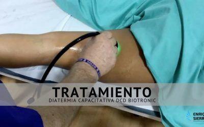 Tratamiento Diatermia Capacitativa DCD