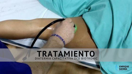 Tratamiento Diatermia Capacitativa DCD Biotronic