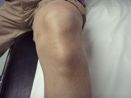 Osgood-Schlatter lesión en la rodilla