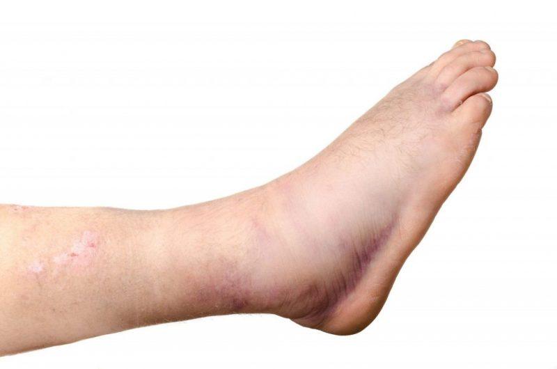 Cuando aplicar frío o crioterapia en un esguince de tobillo