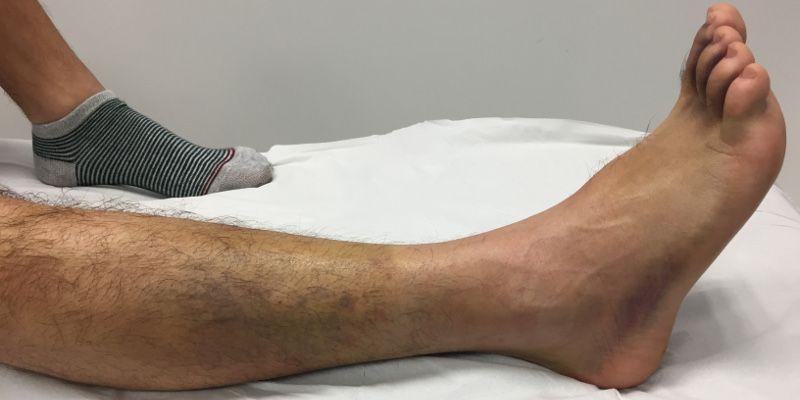 Ejercicios para esguince de tobillo Fisioterapeuta Zaragoza