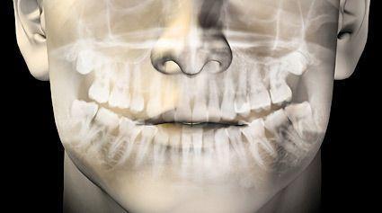 Fisioterapeuta en Zaragoza para disfunción articulación temporomandibular atm