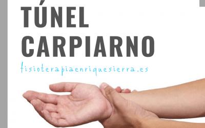 Ejercicios Túnel Carpiano