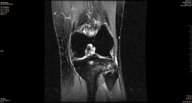 Magnetoterapia para edema oseo rodilla pie cadera