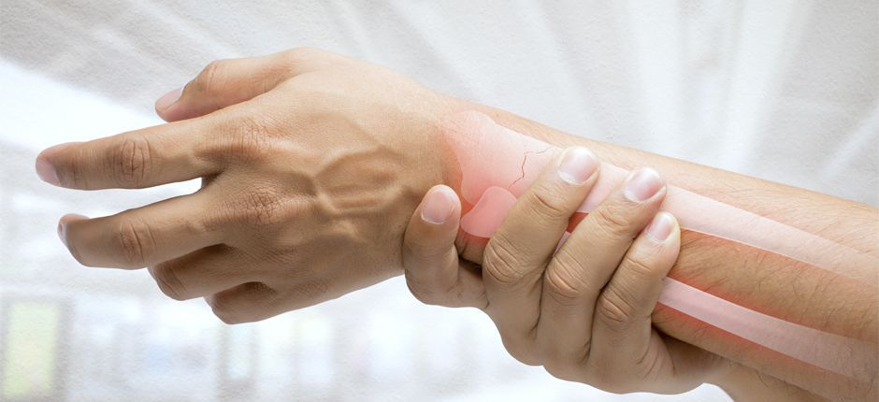fisioterapeuta en zaragoza para fractura de muñeca colles