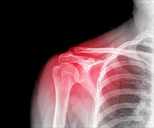 Calcificaciones en el hombro ondas de choque zaragoza fisioterapeuta