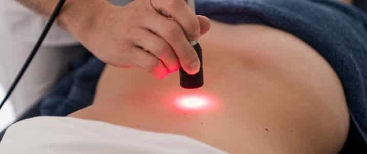 Laserterapia fisioterapia en zaragoza fisioterapeuta mejor valorado dkv sanitas mapfre adeslas fiatc