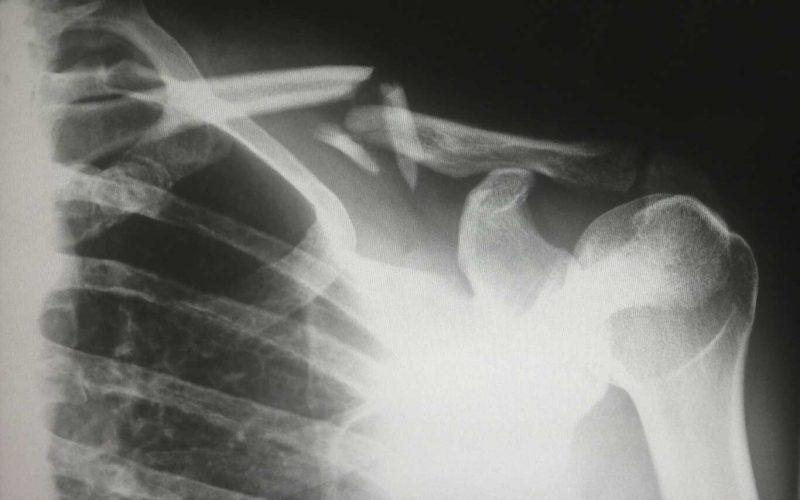 rehabilitacion fractura de clavicula fisioterapeuta en zaragoza dkv sanitas fiatc mapfre adeslas